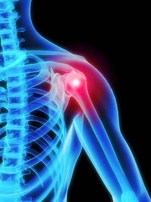 Illuminated model of shoulder joint pain